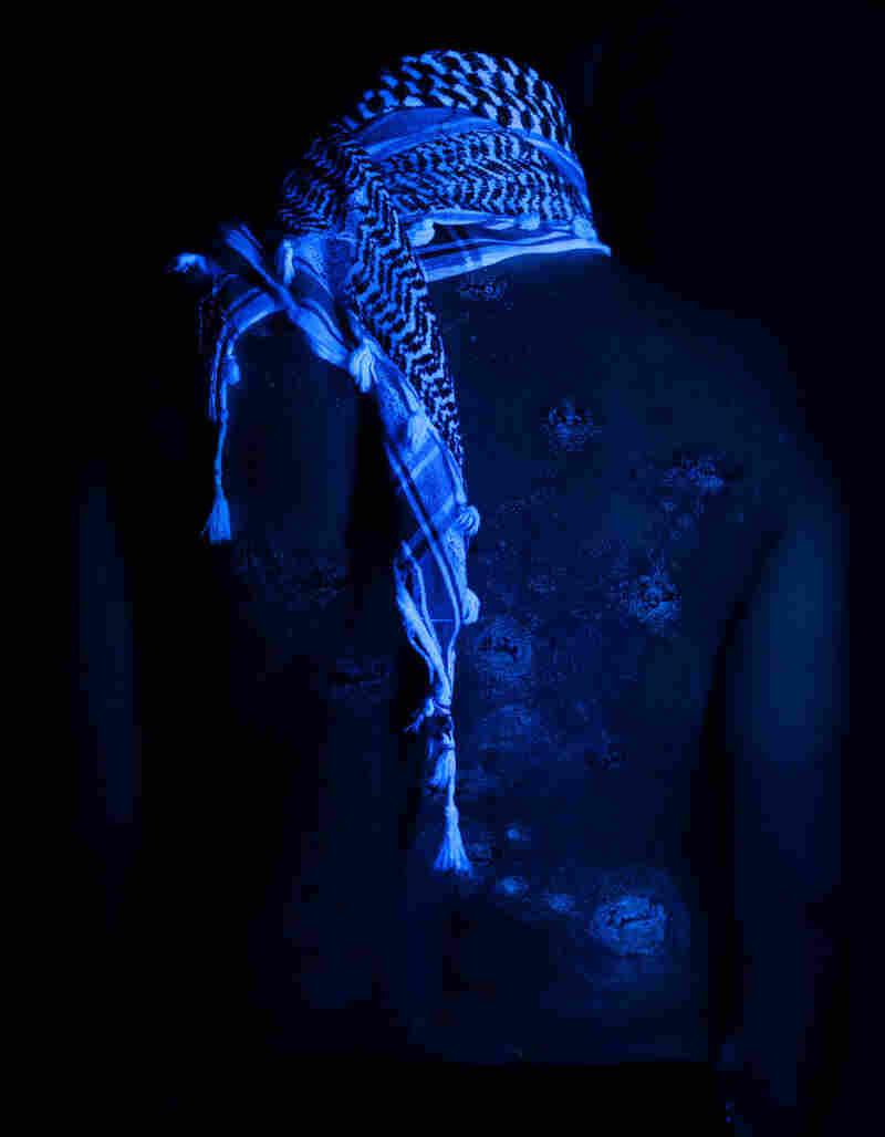 Wafaa Bilal's back as seen under a black light