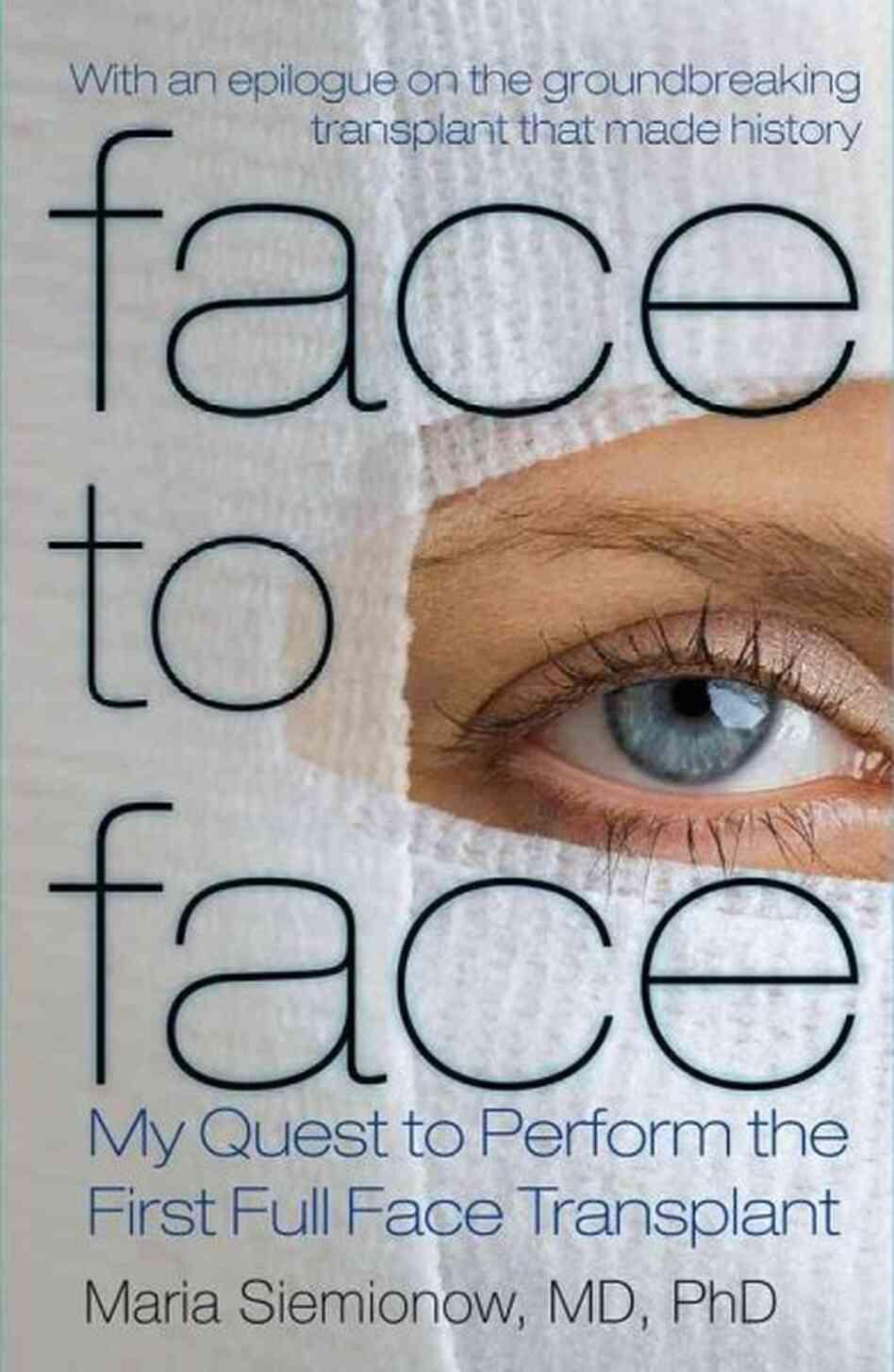 face transplants essay