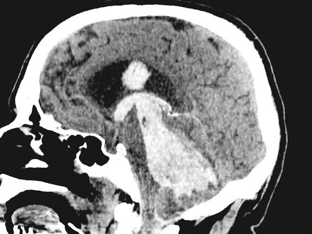 A CT scan shows a ghostly brain hemorrhage.