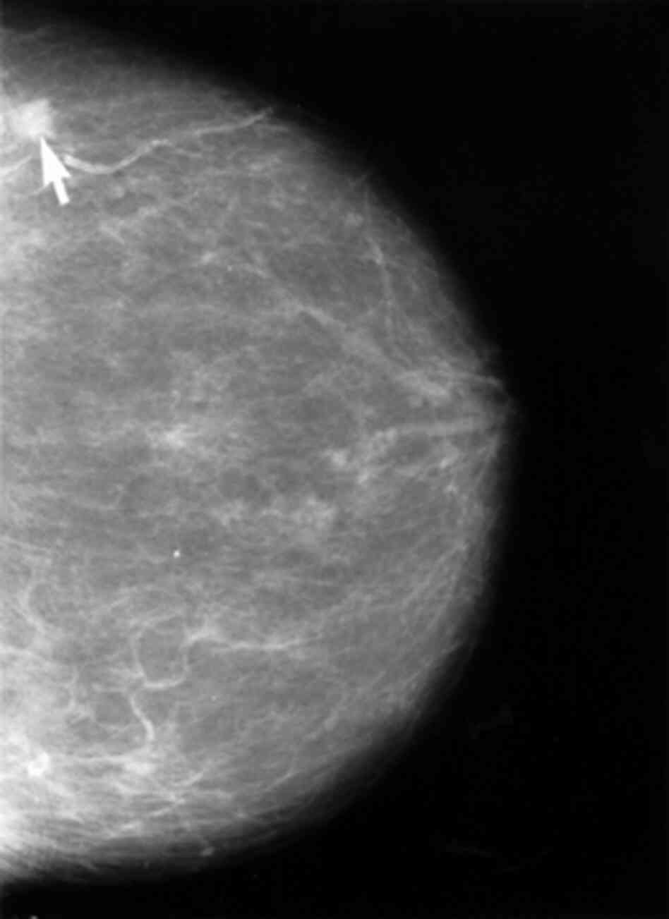 Breast cancer shows up on a mammogram.