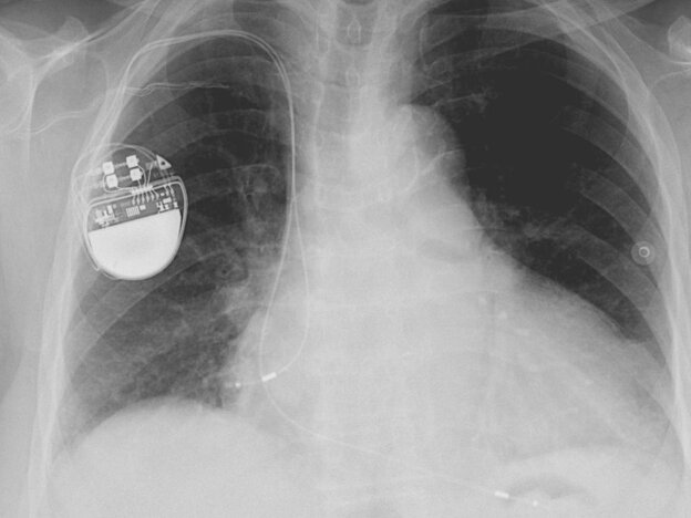 An implanted pacemaker.