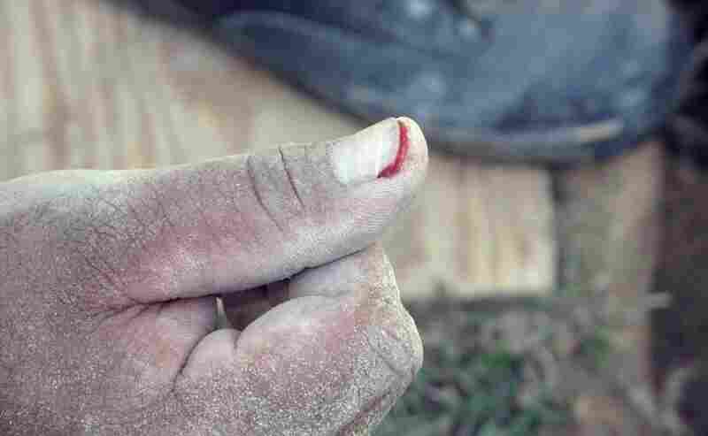 Hand injuries are not uncommon during any home renovation.