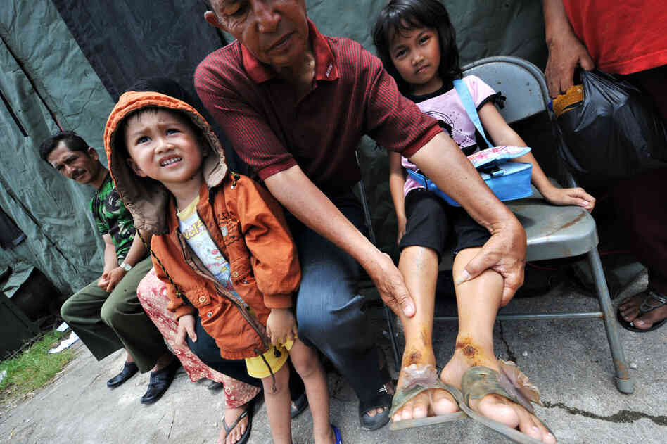 An Indonesian man holds up the injured legs of his daughter as she waits for medical treatment at a U.S. field hospital Wednesday in Padang. International aid flowed into Indonesia as schools and shops re-opened.