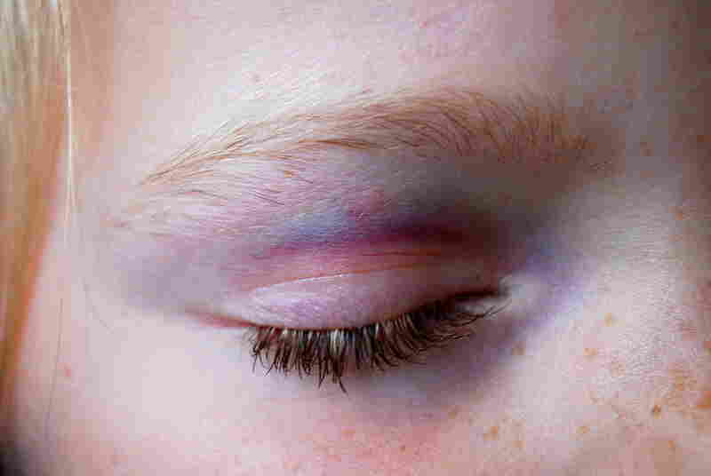 """""""It was the week before her first day of school, when my younger sister decided she wanted to try tae kwon do. Within five minutes, she came to me with a black eye. When the first day of school came along, her eye had turned the most beautiful of colors."""""""