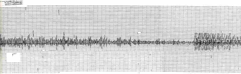 One lesson seismologists learned in 1989 was that much of the monitoring equipment scattered around California was too sensitive for powerful quakes like Loma Prieta, which essentially overloaded the instruments. Above is a seismogram from the 1989 quake; note how the reading is clipped during the most violent shaking. Since then, accelerometers have been installed at monitoring sites to captur...
