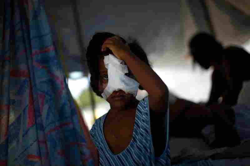 A Haitian girl, whose nose and cheek were shattered in the quake, holds her head at the main hospital in downtown in Port-au-Prince.