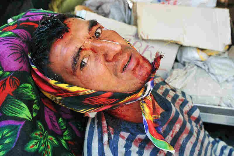 An Uzbek man injured in ethnic violence rests in an Uzbek neighborhood in Osh.