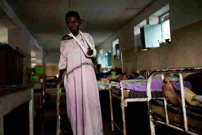 Tereza Polino recuperates in the Tambura Hospital after the LRA stole her possessions, broke her arm and set fire to her home in Zangia, Western Equatoria state.
