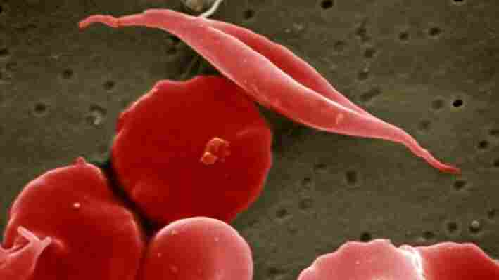 Sickle-cell and normal red blood cells