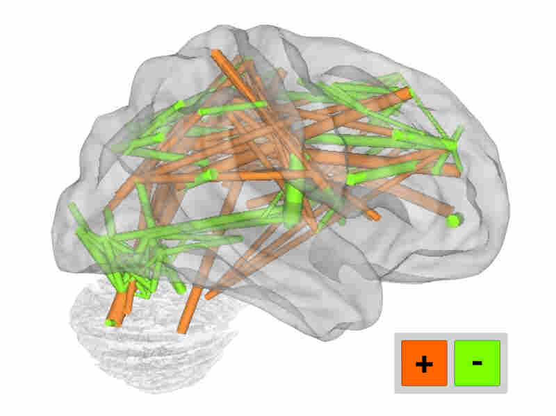 Functional brain connections from MRI data
