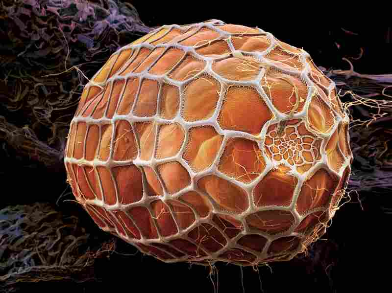 The orange hue of this zebra longwing butterfly egg is a warning to predators. The egg contains cyanide and other toxins.