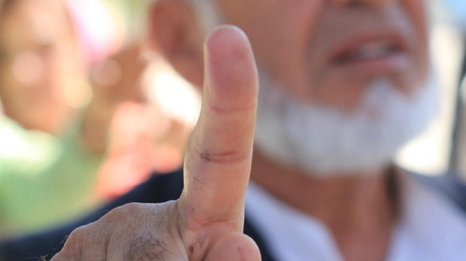 Haji Gul Nazim shows how he was able to wash off voter registration ink from his finger. To vote in Afghanistan, each voter presents and identification card and dips his finger in a bottle of indelible ink. If the ink washes off, voters might then be able to vote again -- using bogus identification cards.