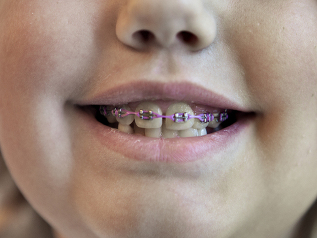 Rachel Bateman, 9, has braces to correct an overbite. Her orthodontist opted not to use expanders to expand her upper arch.