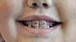 Braces For Young Kids Might Not Always Be Best