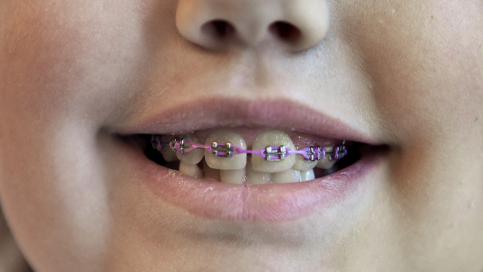 Braces For Young Kids Might Not Always Be Best : NPR