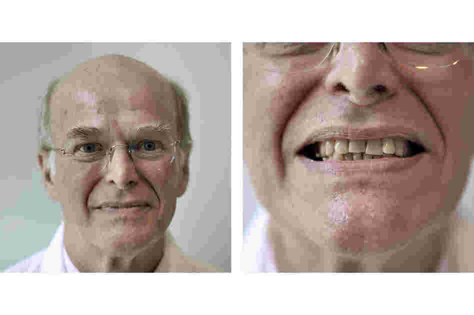 Orthodontist Robert Williams never had braces, and has no plans to improve his teeth. Invisalign, a clear orthodontic device, might straighten his front teeth, he says, but it's not worth the problems it would cause for his back teeth.