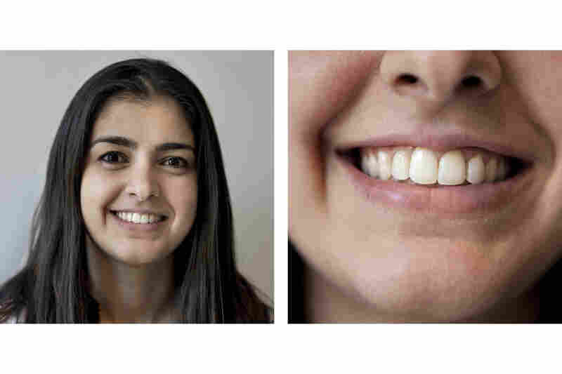 "Dalia Shlash, an orthodontist-in-training, didn't wear a retainer after first having braces when she was 14.  She later had Invisalign treatment to correct the relapse. ""Teeth always want to go back to the way they were initially,"" she says."