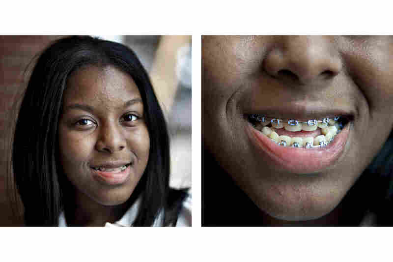 Quinique Jones, 15, will soon be free of braces. Her mother, Pamika Lee, says they have perfected her smile.