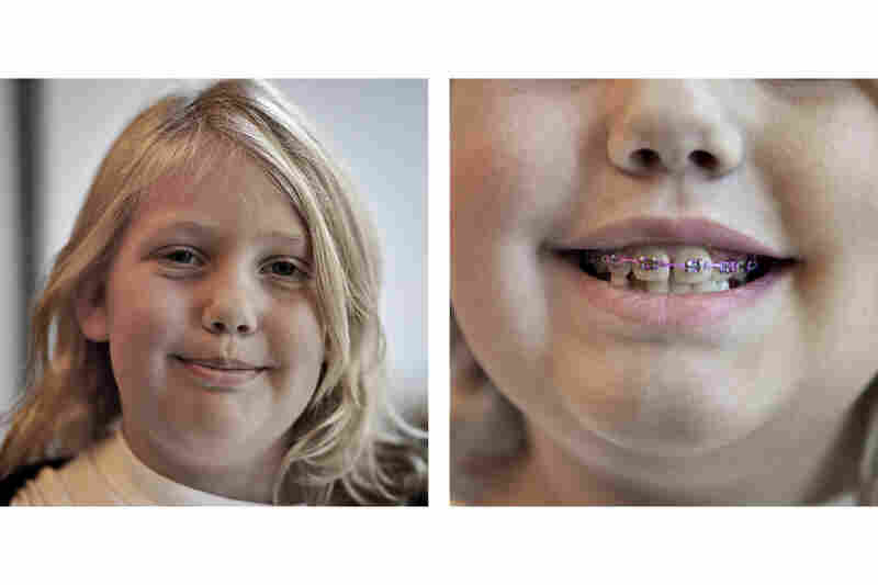 A crossbite led Rachel Bateman, 9, to a mouth full of braces. Williams, her orthodontist, decided not to give her an expander, a popular device that can sometimes lead to relapse.