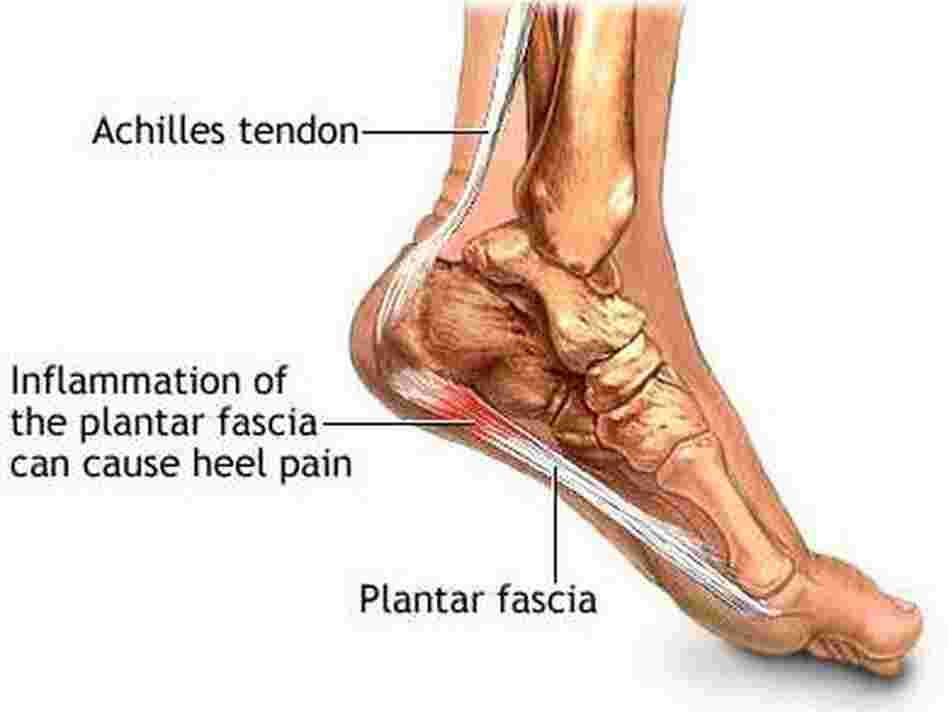 Plantar fasciitis refers to inflammation of the plantar fascia, which causes heel pain.