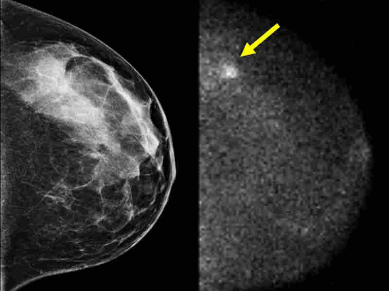 breast cancer spot