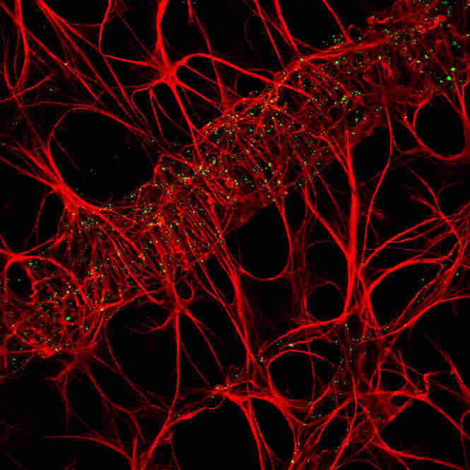 19th Place: Cameron JohnsonRat retina outlining the retinal vessel network, 100x