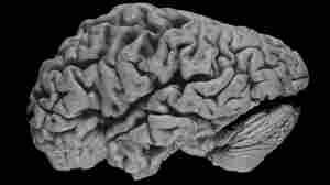 A brain shrunken by Alzheimer's