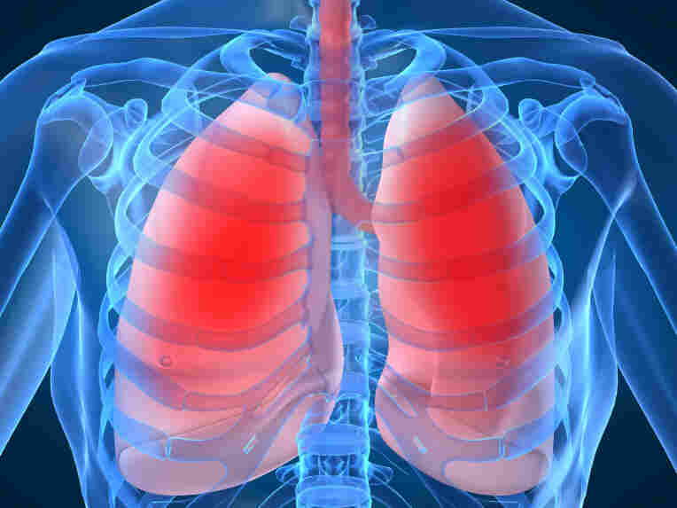 Lung infections are a common killer