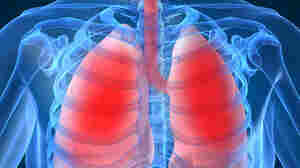 Respiratory Disease Atlas Charts Forgotten Health Threat