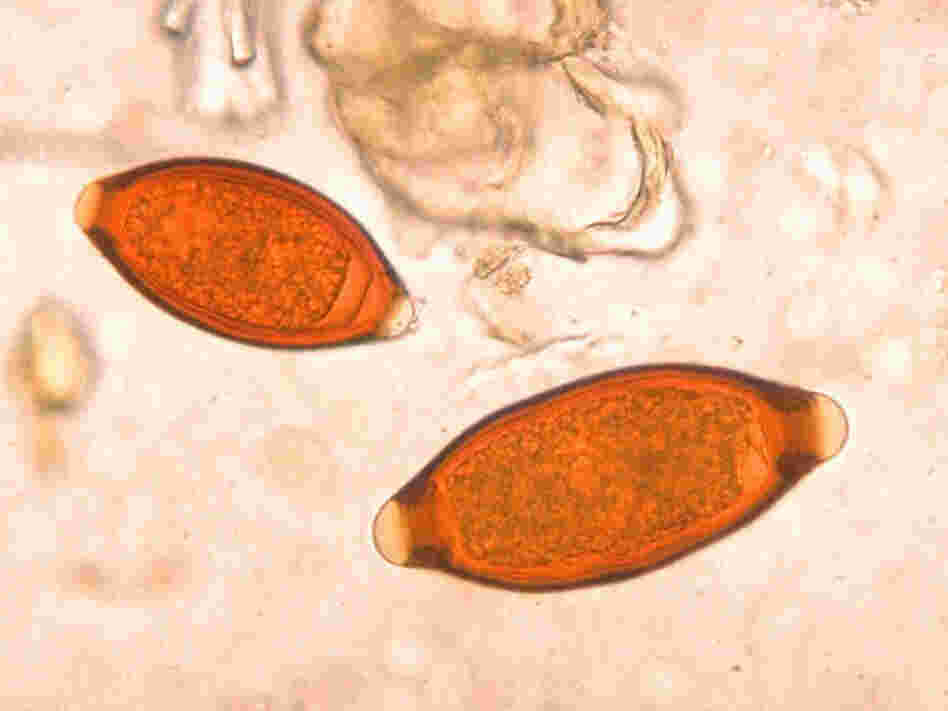 Eggs of the parasite Trichuris trichiur