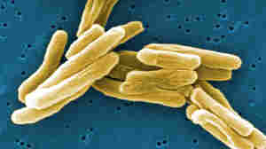 Tuberculosis bacteria appear gold against a blue background.