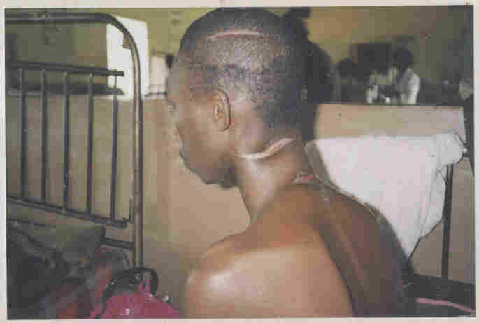 A man with three healing machete wounds on head and neck