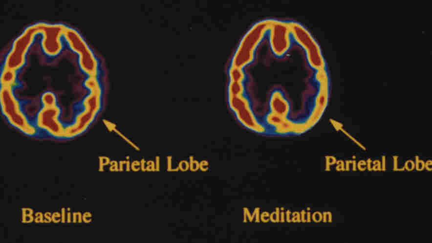 During meditation, activity in the brain -- specifically the parietal lobe is decreased. This area of the brain is responsible for giving us a sense of our orientation in space and time.