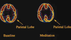 During meditation, activity in the brain -- specifically the parietal