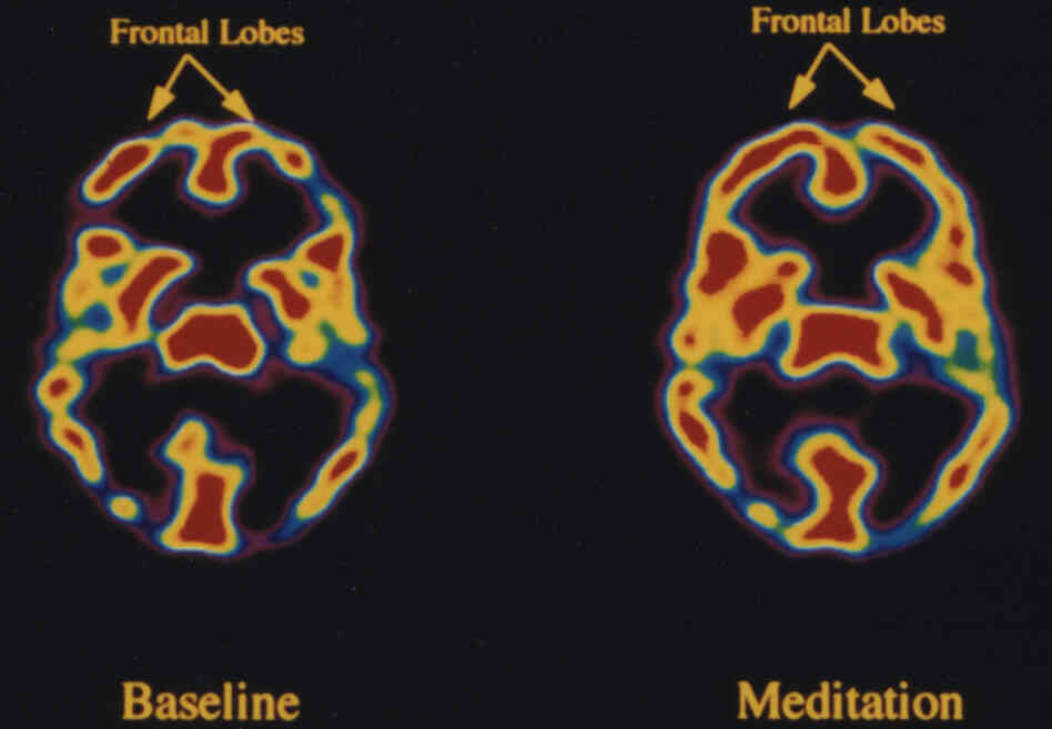 The effect of meditation on the brain activity in Tibetan meditators: frontal lobes