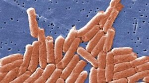 Salmonella like these are a leading cause of foodborne illnesses, hospitalizations and deaths.