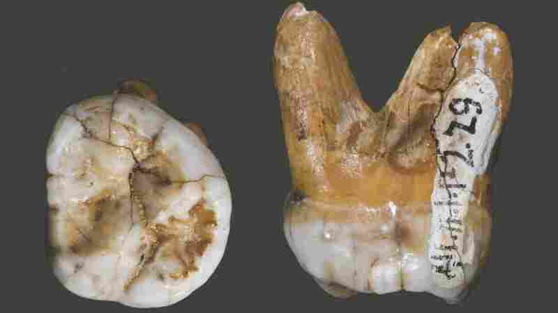 This tooth, which was also found in Denisova Cave, has a DNA structure similar to that of a finger bone, but a shape and physical structure very different from that of Neanderthals and modern humans. This leads researchers to believe that the Denisova are an evolutionarily distinct group.