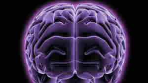 Our Brains Are Shrinking. Are We Getting Dumber?