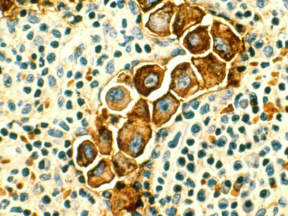 Metastatic breast cancer cells found in a lymph node.