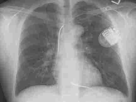 A normal chest  X-ray after the implant of an cardioverter defibrillator.