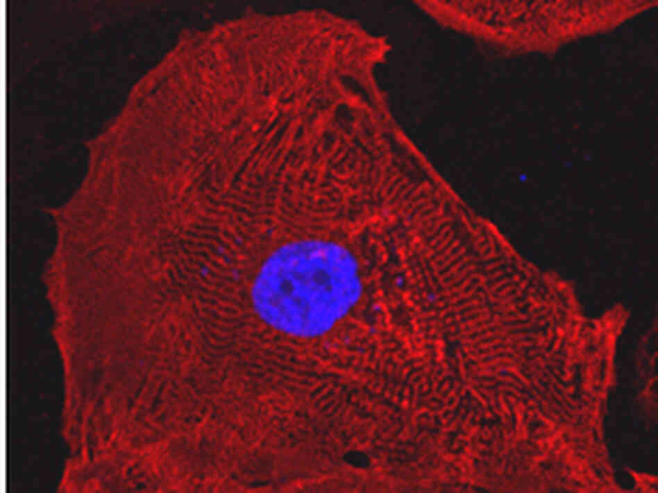 A heart cell derived from human-induced pluripotent stem  cells.