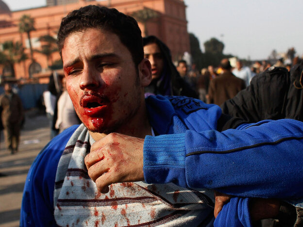 A wounded man in Tahir Square today (Feb. 2, 2011).