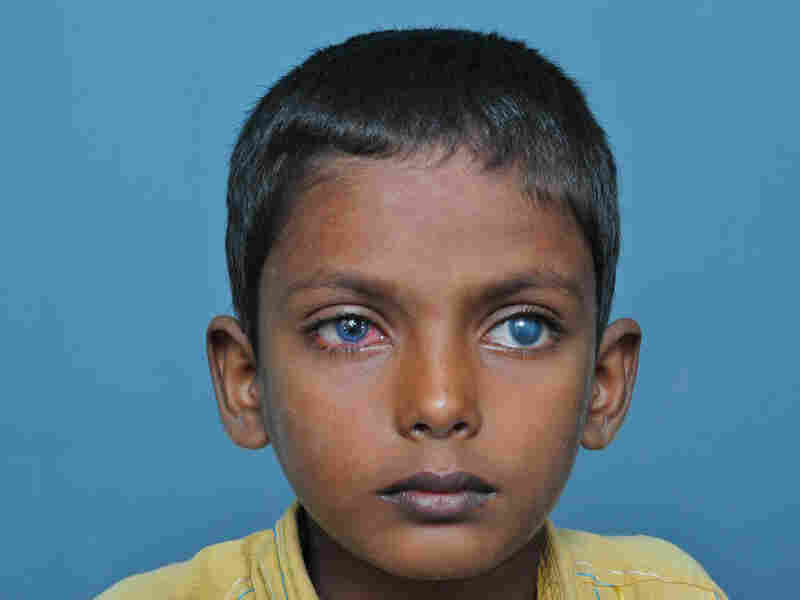 The young patient's eyes after his cornea  transplant.