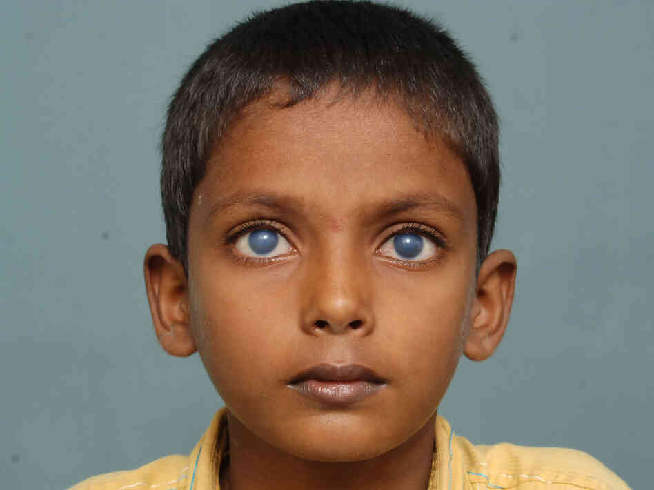 This young patient from India received his cornea transplant in 2009, when he was 10. Here he is shown before (above) and after (below) the transplant, which he received at the LV Prasad Eye Institute (LVPEI), SightLife's partner center in Hyderabad, India.