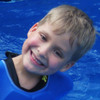 Brett Hallman had a surgery — as a 25-week fetus — to treat his spina bifida. Now, he's an active first grader who enjoys swimming and other sports.