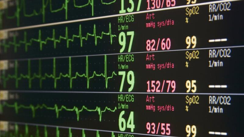 Alarming Findings About Hospital Monitors : Shots - Health News : NPR