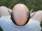 Researchers think early baldness may be a warning sign for prostate cancer.