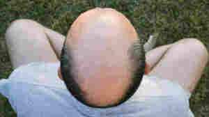 Men Who Lose Hair Young At Bigger Risk For Prostate Cancer