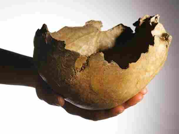 One of the human skull-cups made by ice age Britons 14,700 years ago unearthed from Gough's Cave. The process required great skill and knowledge of anatomy.