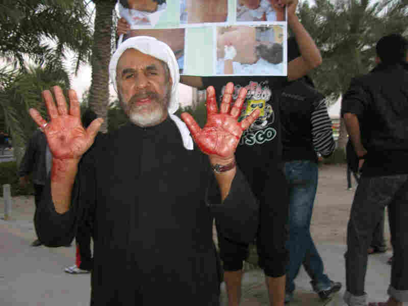 A man named Ahmed shows his blood-smeared hands after Bahraini troops opened fire  on demonstrators in Manama. He said he had tried to help a boy  who was shot in the head.